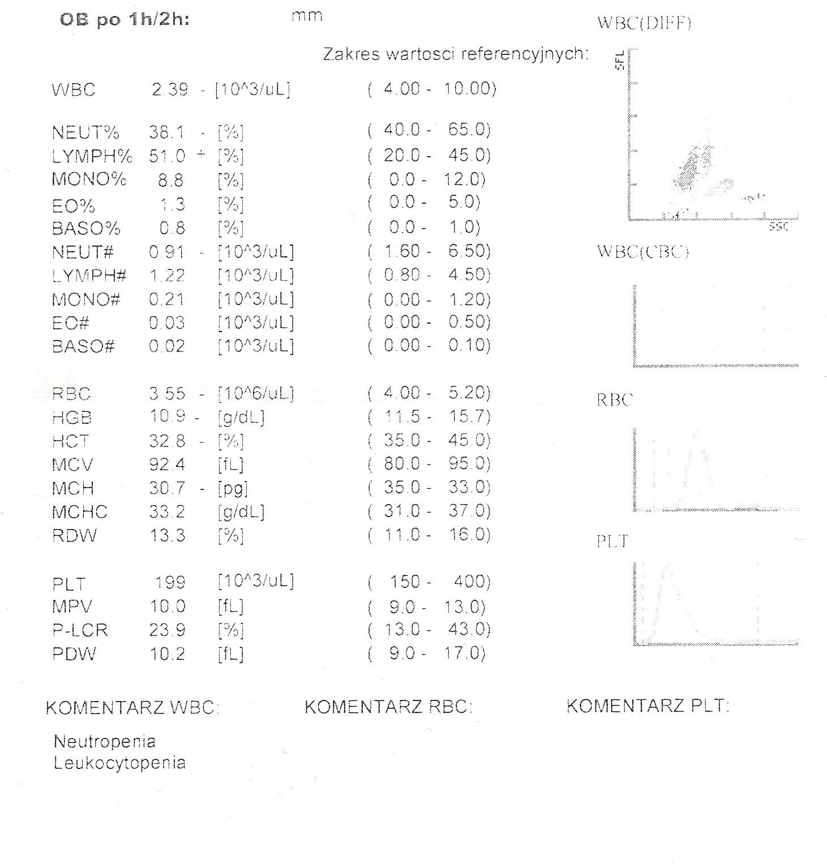 Glodne_pl-Karta informacyjna leczenia szpitalnego w oddziale psychiatrii (anorekcja, bulimia)-4