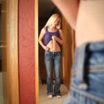Skutki anoreksji - glodne